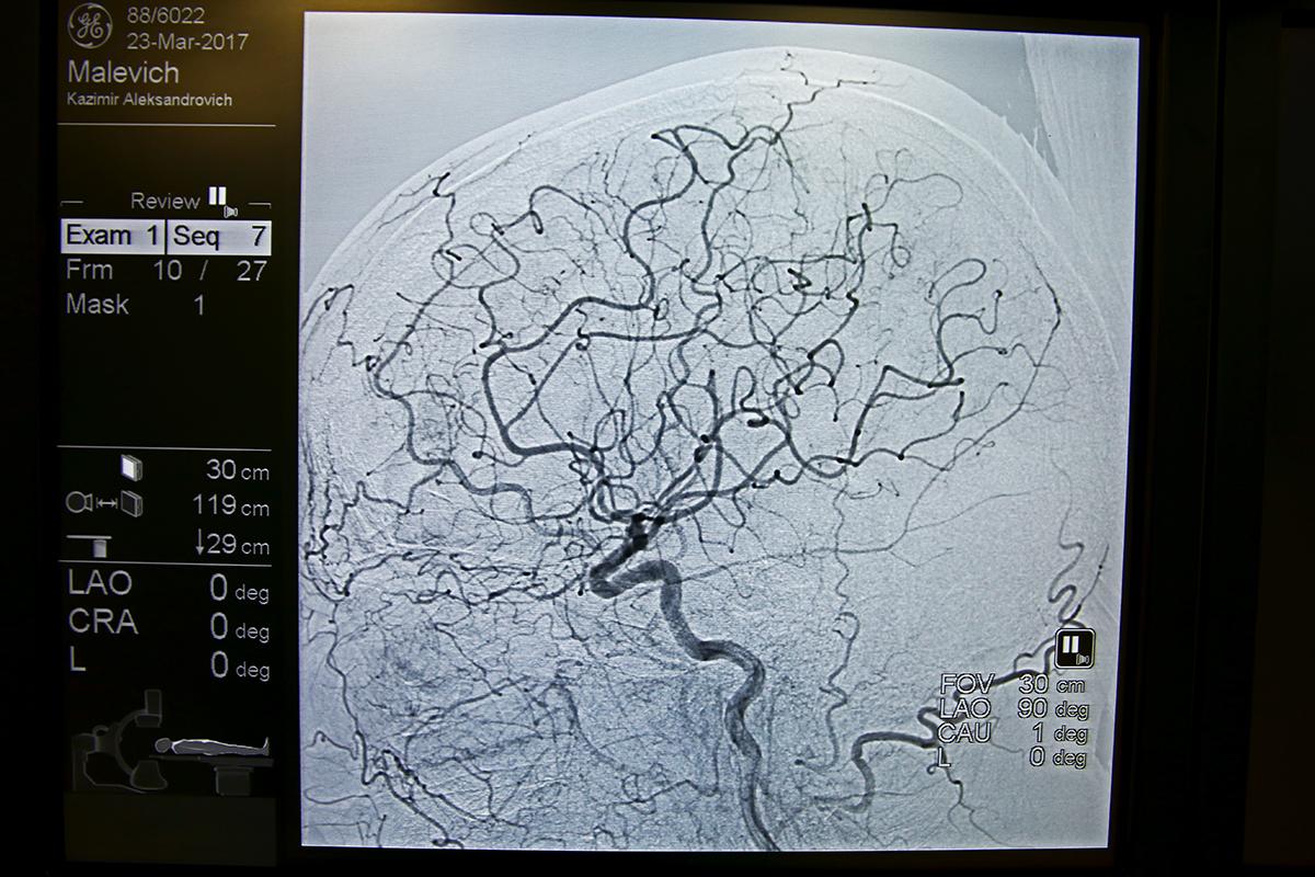 Снимок сосудов головного мозга.