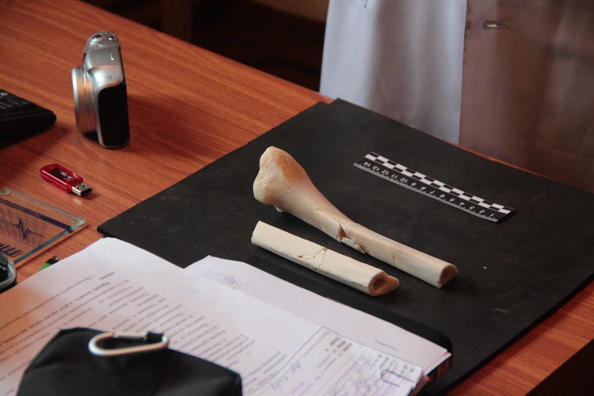 Фрагменты кости из ноги погибшего в ДТП человека. Фото: Юрий ПИВОВАРЧИК