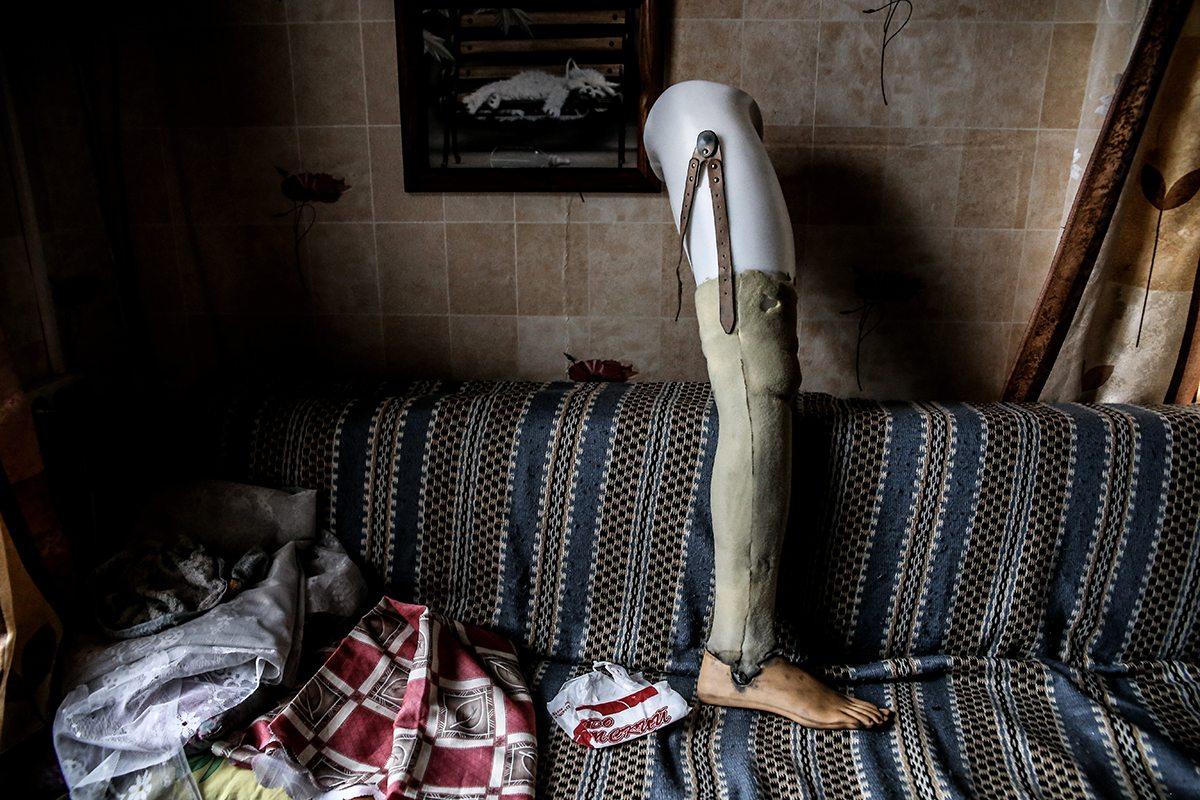 Сломан, но не сломлен. Как живет байкер, пострадавший в резонансном ДТП в Барановичах